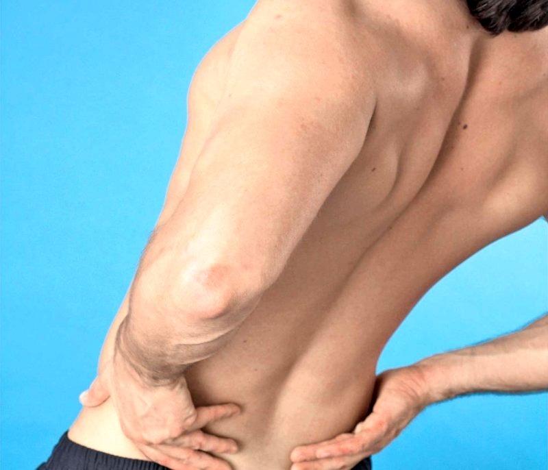 Dureri musculare la nivelul piciorului cu hernie spinarii